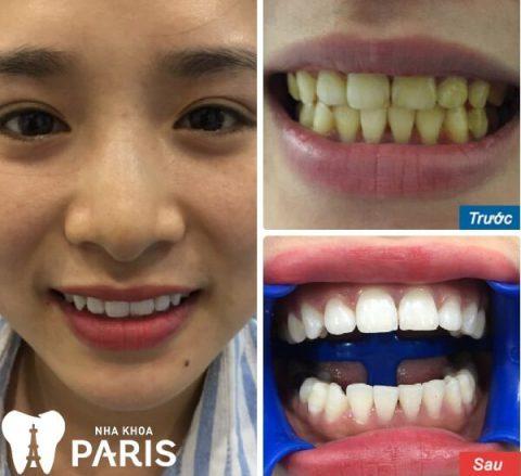 Khách hàng tẩy trắng răng WHITEMAX tại Nha khoa Paris.