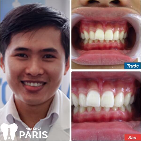 Anh Hoàng Minh Quân trước và sau khi tẩy trắng răng laser WhiteMax