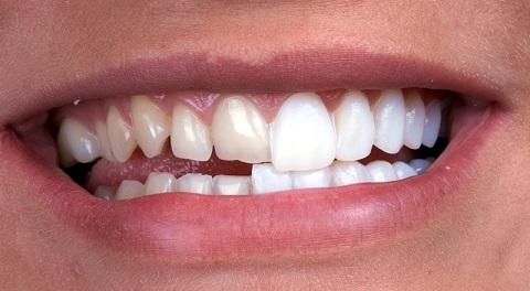 Hải Phòng - Review địa chỉ bọc răng sứ uy tín nhất
