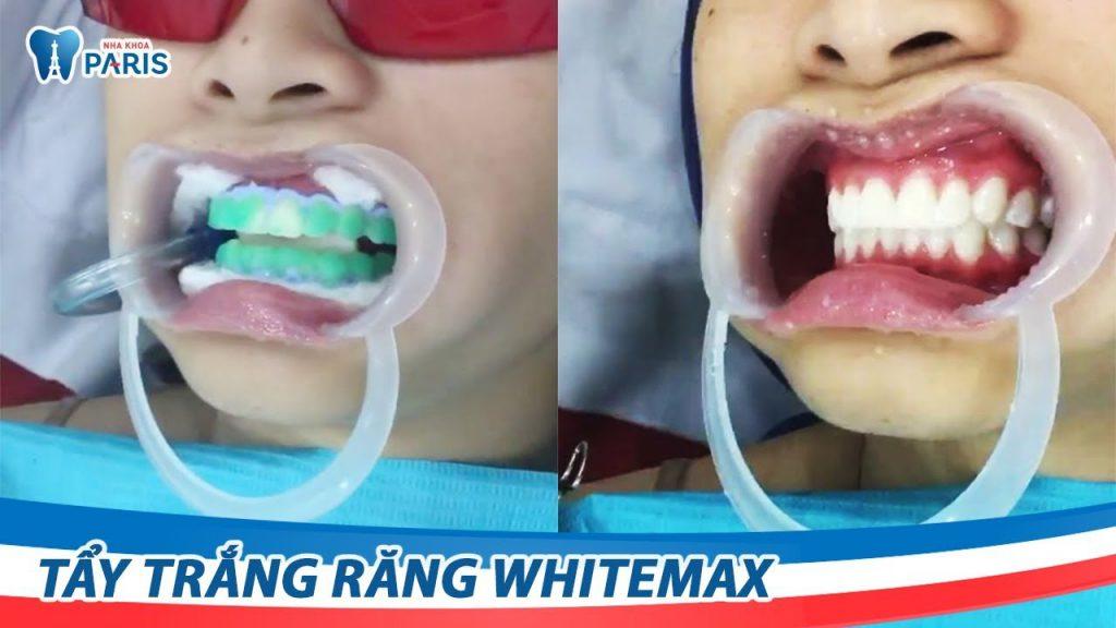 Video tẩy trắng răng Laser WhiteMax tại Nha khoa Paris