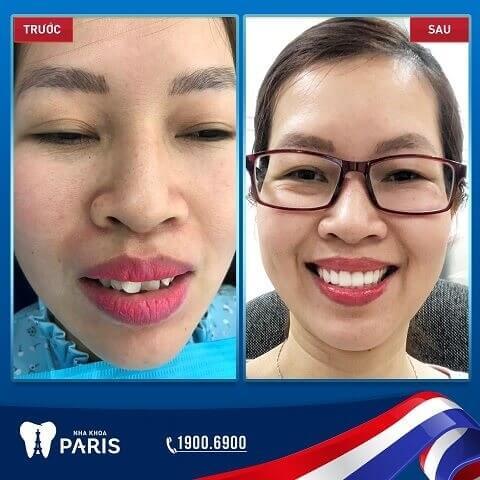 Cải thiện răng khấp khểnh nhẹ bằng bọc sứ