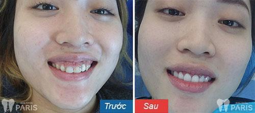 Phẫu thuật chỉnh lợi và bọc răng sứ giúp nụ cười đẹp tự tin hơn